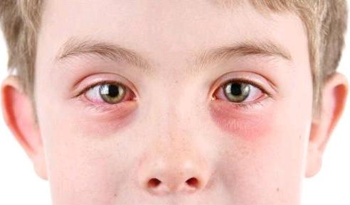 Alerjik göz nezlesi tedavisi